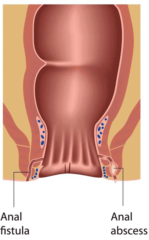 Anal fistula
