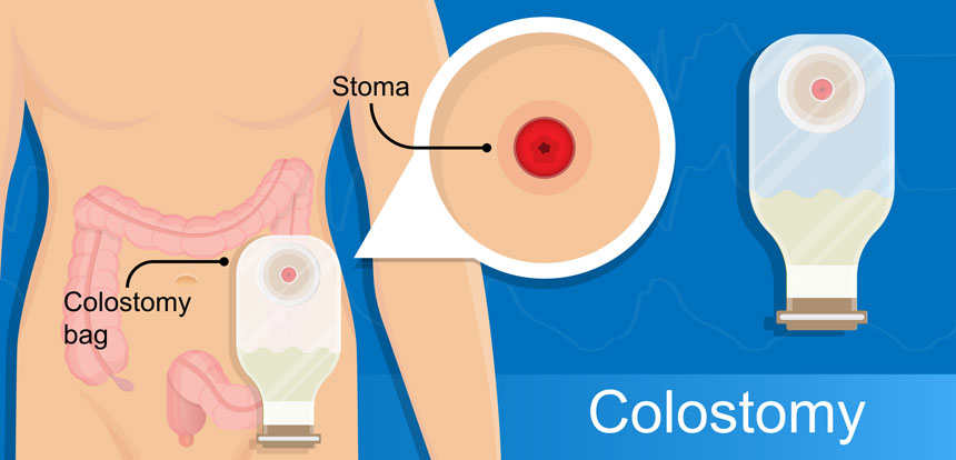 Colostomy diagram