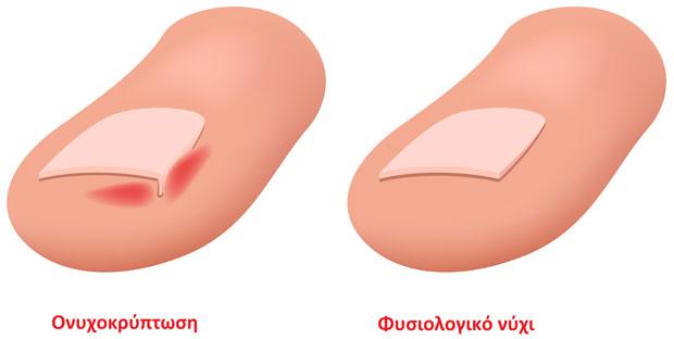 Ονυχοκρύπτωση (είσφρυση όνυχος)
