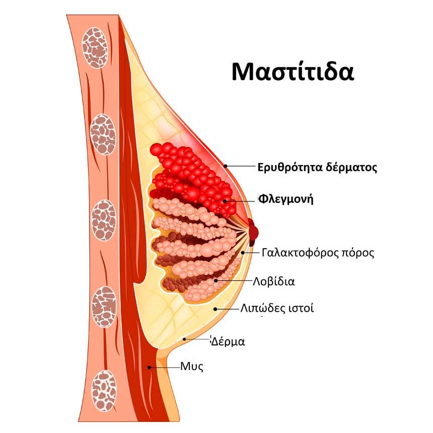 Μαστίτιδα και απόστημα του μαστού