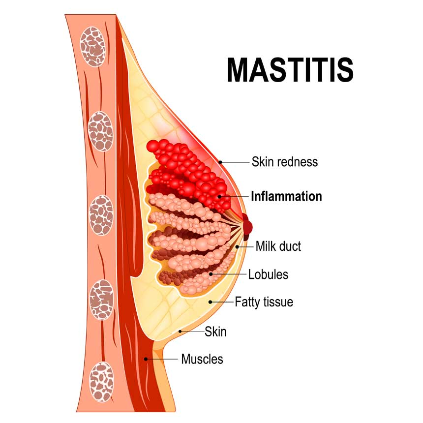 Mastitis and breast abscess