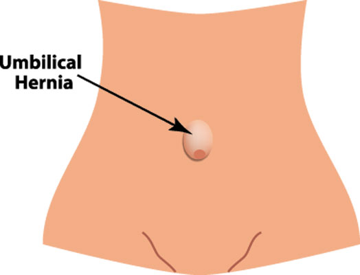 Inguinal hernia & Umbilical hernia