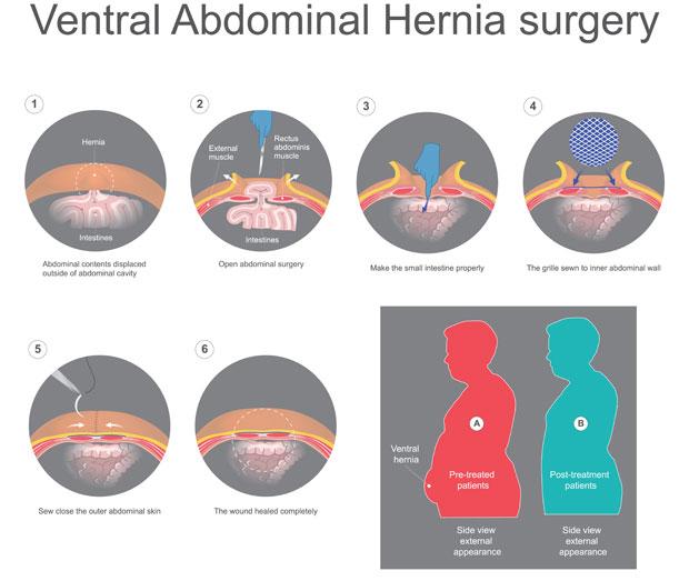 Complex hernia repair