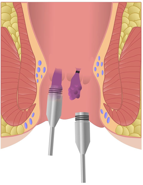 Απολίνωση αιμορροϊδικών αρτηριών