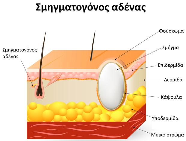 Sebaceous-cyst-GR