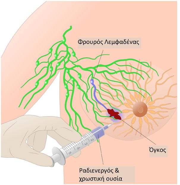 Βιοψία φρουρού λεμφαδένα